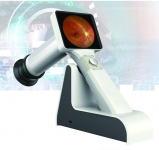 FB-M100 --- Hand-help Fundus Camera